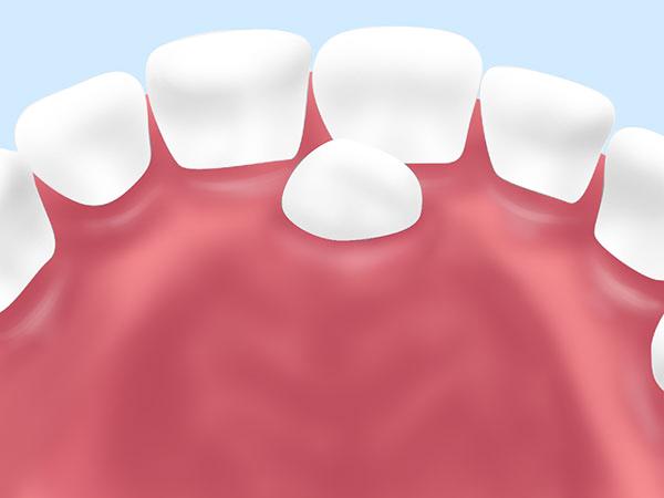 過剰歯(かじょうし)の抜歯