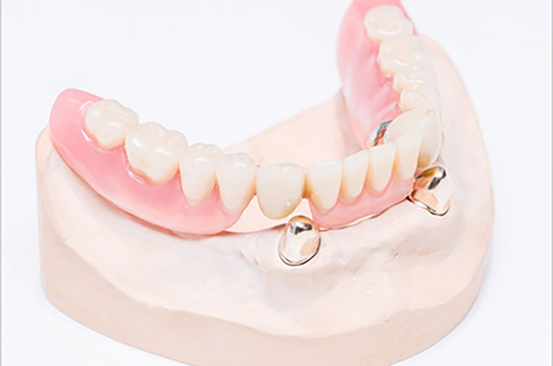 コーヌスクローネ義歯(テレスコープシステム)