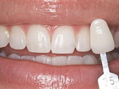 歯の色を記録