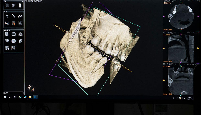精密な診断ができる歯科用CT ヨシダ社製トロフィーパンプラス