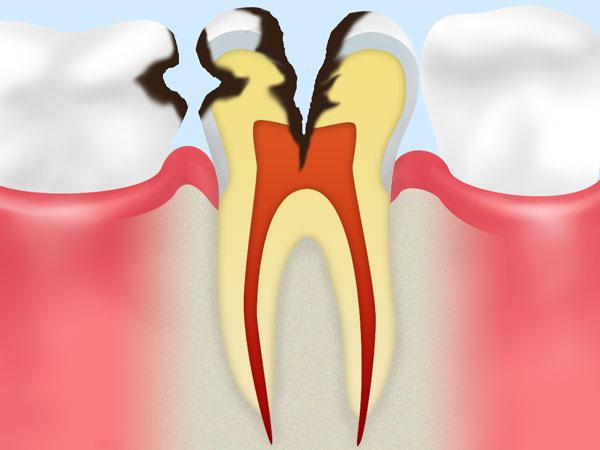 虫歯の進行具合をご存知ですか?