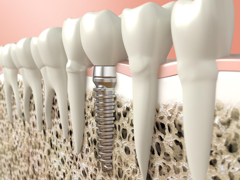 失った歯の機能を取り戻しお口の健康を守るインプラント治療