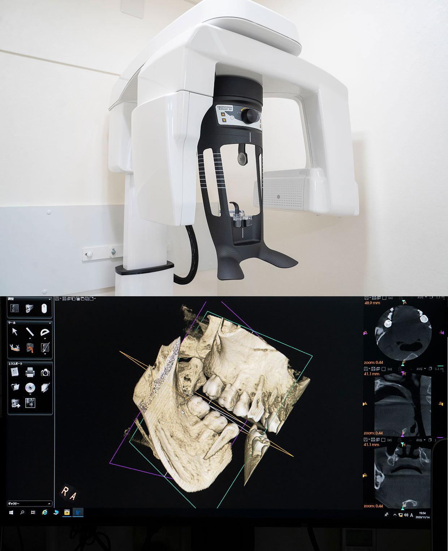 最新医療機器 高性能CT導入 ヨシダ社製トロフィーパンプラス