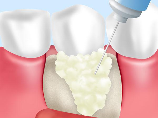 リグロス(歯周組織再生療法)