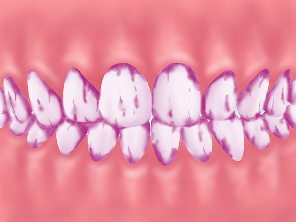 歯垢の染め出し